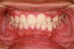signs of gum disease